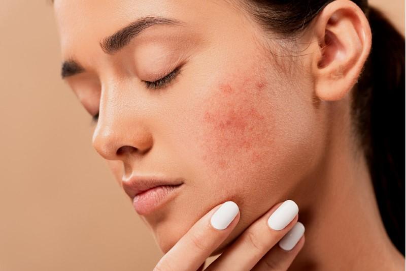 Bőrápolási